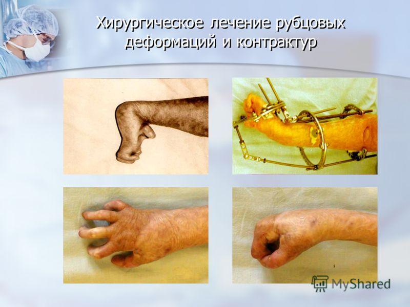 Хирургическое лечение рубцовых деформаций и контрактур