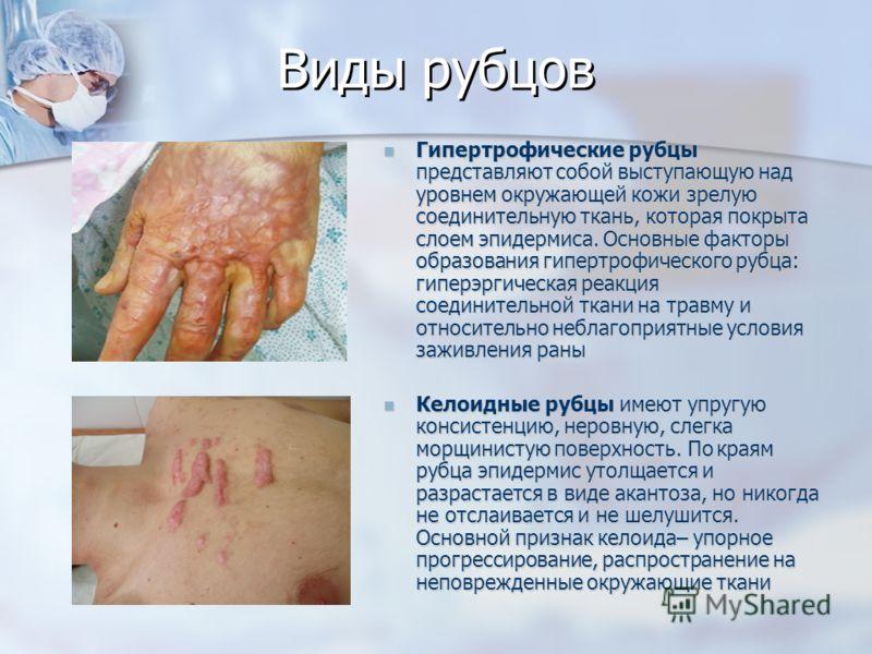Виды рубцов Гипертрофические рубцы представляют собой выступающую над уровнем окружающей кожи зрелую соединительную ткань, которая покрыта слоем эпидермиса. Основные факторы образования гипертрофического рубца: гиперэргическая реакция соединительной