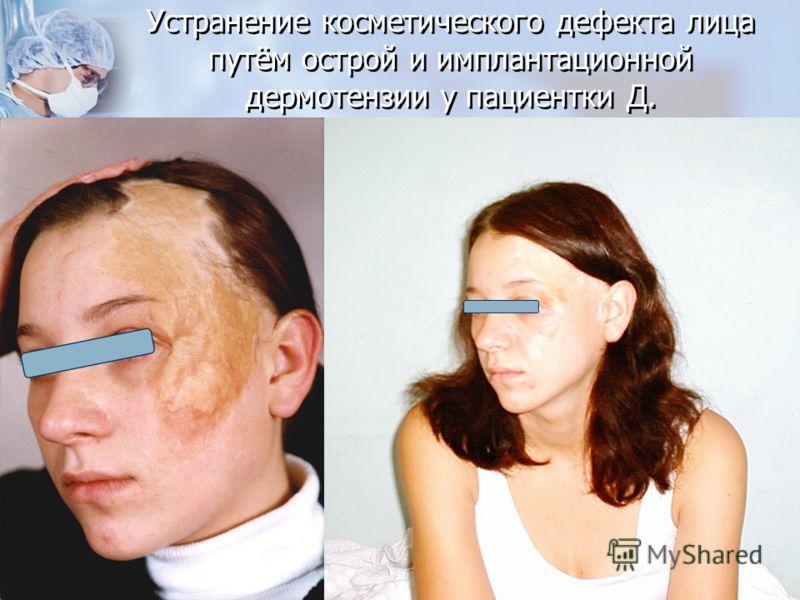 Устранение косметического дефекта лица путём острой и имплантационной дермотензии у пациентки Д.