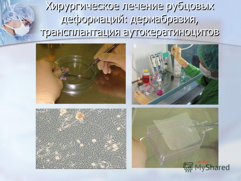 Хирургическое лечение рубцовых деформаций: дермабразия, трансплантация аутокератиноцитов