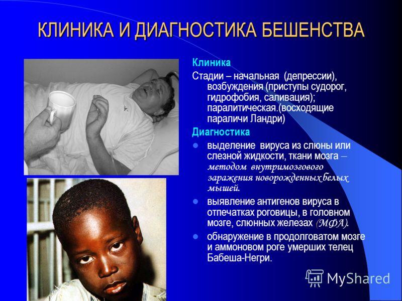 КЛИНИКА И ДИАГНОСТИКА БЕШЕНСТВА Клиника Стадии – начальная (депрессии), возбуждения (приступы судорог, гидрофобия, саливация); паралитическая.(восходящие параличи Ландри) Диагностика выделение вируса из слюны или слезной жидкости, ткани мозга – метод