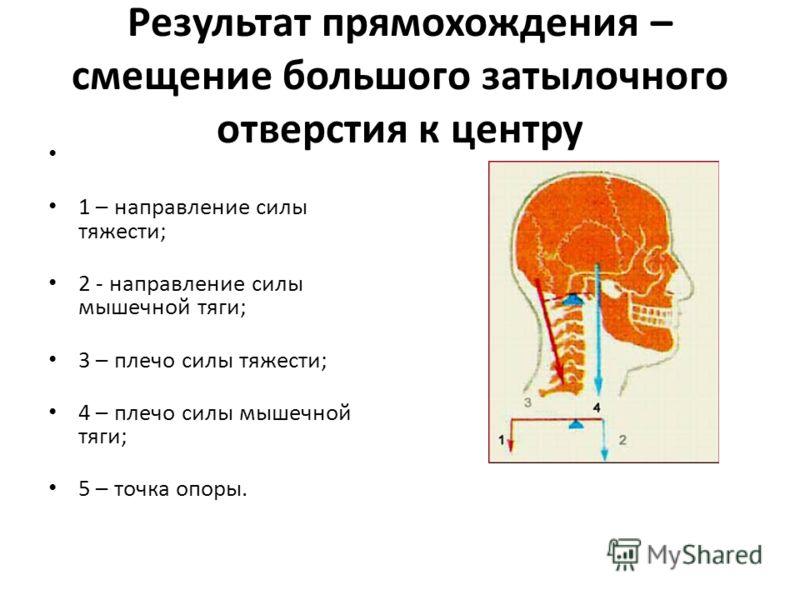 Результат прямохождения – смещение большого затылочного отверстия к центру 1 – направление силы тяжести; 2 - направление силы мышечной тяги; 3 – плечо силы тяжести; 4 – плечо силы мышечной тяги; 5 – точка опоры.