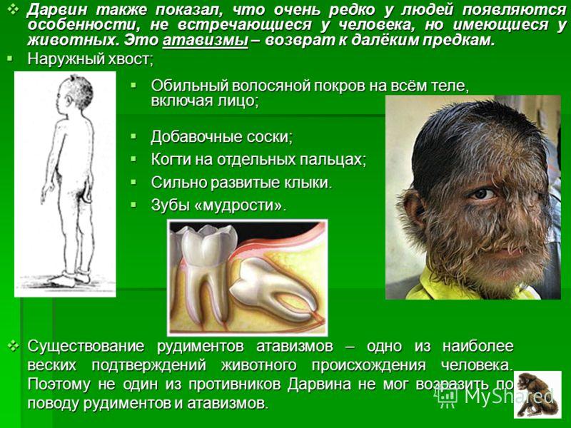Дарвин также показал, что очень редко у людей появляются особенности, не встречающиеся у человека, но имеющиеся у животных. Это атавизмы – возврат к далёким предкам. Дарвин также показал, что очень редко у людей появляются особенности, не встречающие