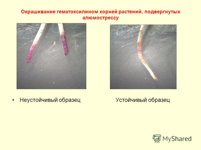 Окрашивание гематоксилином корней растений, подвергнутых алюмострессу Неустойчивый образец Устойчивый образец