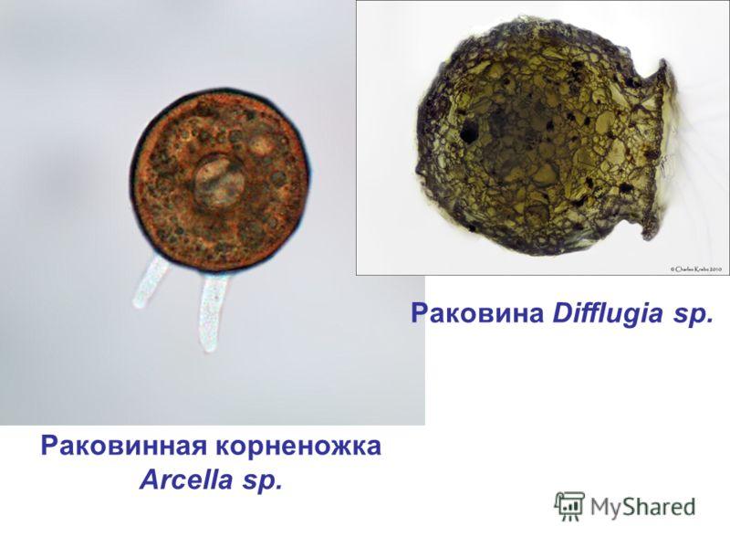 Раковинная корненожка Arcella sp. Раковина Difflugia sp.
