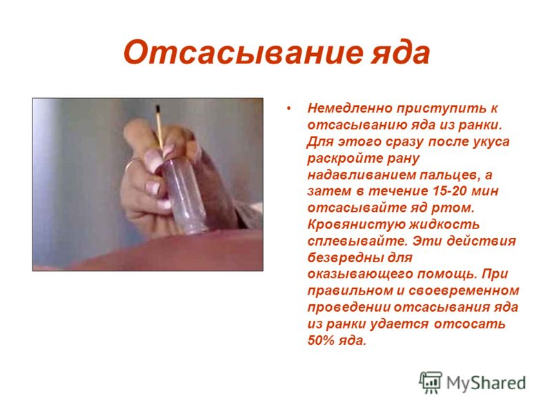 Отсасывание яда Немедленно приступить к отсасыванию яда из ранки. Для этого сразу после укуса раскройте рану нaдaвливанием пальцев, а затем в течение 15-20 мин отсасывайте яд ртом. Кровянистую жидкость сплевывайте. Эти действия безвредны для оказываю