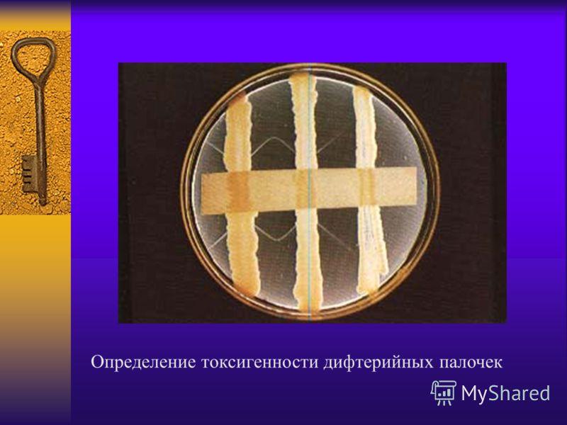 Определение токсигенности дифтерийных палочек