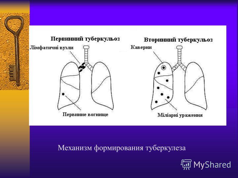 Механизм формирования туберкулеза
