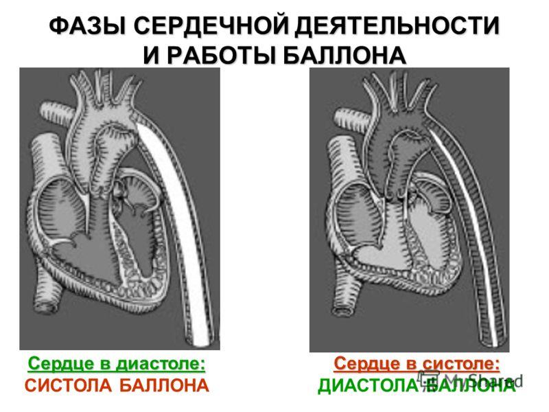 71 ФАЗЫ СЕРДЕЧНОЙ ДЕЯТЕЛЬНОСТИ И РАБОТЫ БАЛЛОНА Сердце в диастоле: СИСТОЛА БАЛЛОНА Сердце в систоле: Сердце в систоле: ДИАСТОЛА БАЛЛОНА