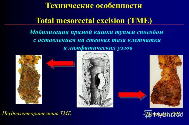 Технические особенности Total mesorectal excision (TME) Неудовлетворительная ТМЕ Неполная ТМЕ Мобилизация прямой кишки тупым способом с оставлением на стенках таза клетчатки и лимфатических узлов