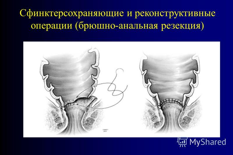 Сфинктерсохраняющие и реконструктивные операции (брюшно-анальная резекция)