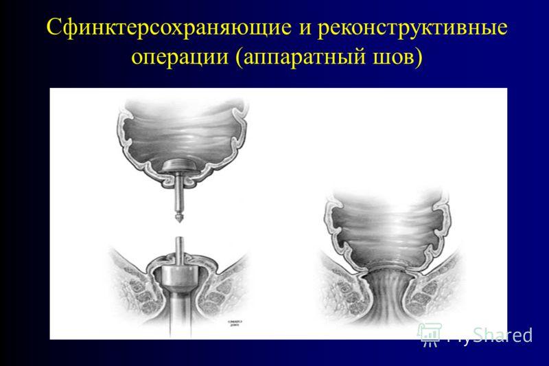 Сфинктерсохраняющие и реконструктивные операции (аппаратный шов)
