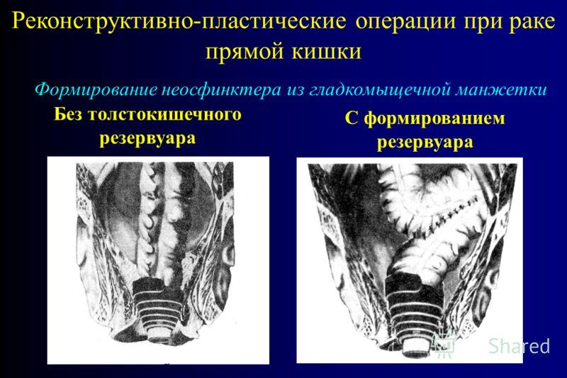 Реконструктивно-пластические операции при раке прямой кишки Формирование неосфинктера из гладкомыщечной манжетки Без толстокишечного резервуара С формированием резервуара