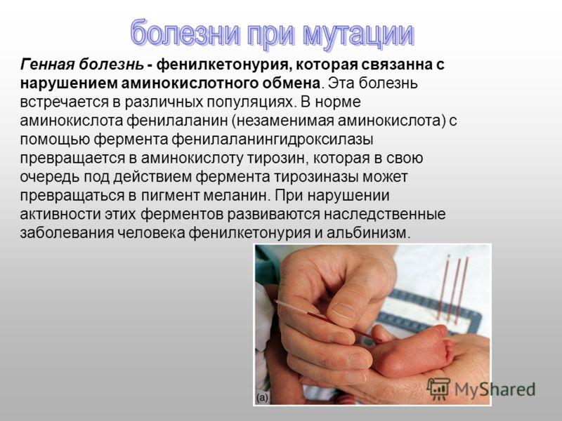 Генная болезнь - фенилкетонурия, которая связанна с нарушением аминокислотного обмена. Эта болезнь встречается в различных популяциях. В норме аминокислота фенилаланин (незаменимая аминокислота) с помощью фермента фенилаланингидроксилазы превращается