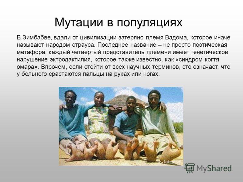В Зимбабве, вдали от цивилизации затеряно племя Вадома, которое иначе называют народом страуса. Последнее название – не просто поэтическая метафора: каждый четвертый представитель племени имеет генетическое нарушение эктродактилия, которое также изве