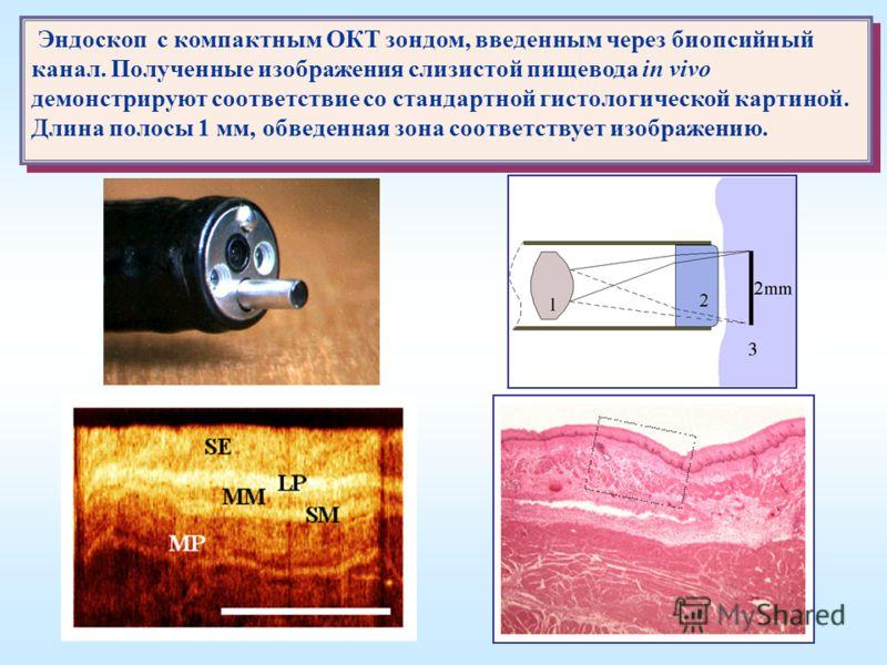 Эндоскоп с компактным ОКТ зондом, введенным через биопсийный канал. Полученные изображения слизистой пищевода in vivo демонстрируют соответствие со стандартной гистологической картиной. Длина полосы 1 мм, обведенная зона соответствует изображению. Эн