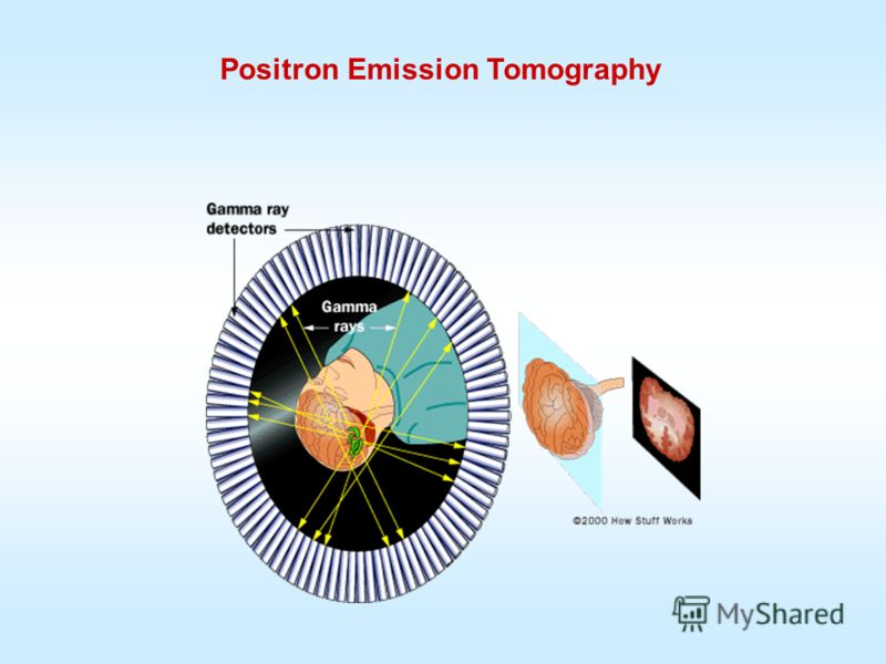 Positron Emission Tomography