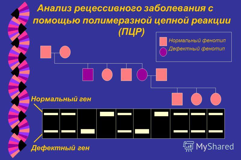 Анализ рецессивного заболевания с помощью полимеразной цепной реакции (ПЦР) Нормальный фенотип Дефектный фенотип Нормальный ген Дефектный ген
