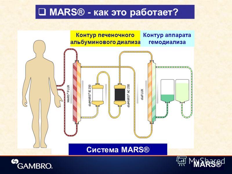MARS® - как это работает? Система MARS® MARS® Контур аппарата гемодиализа Контур печеночного альбуминового диализа