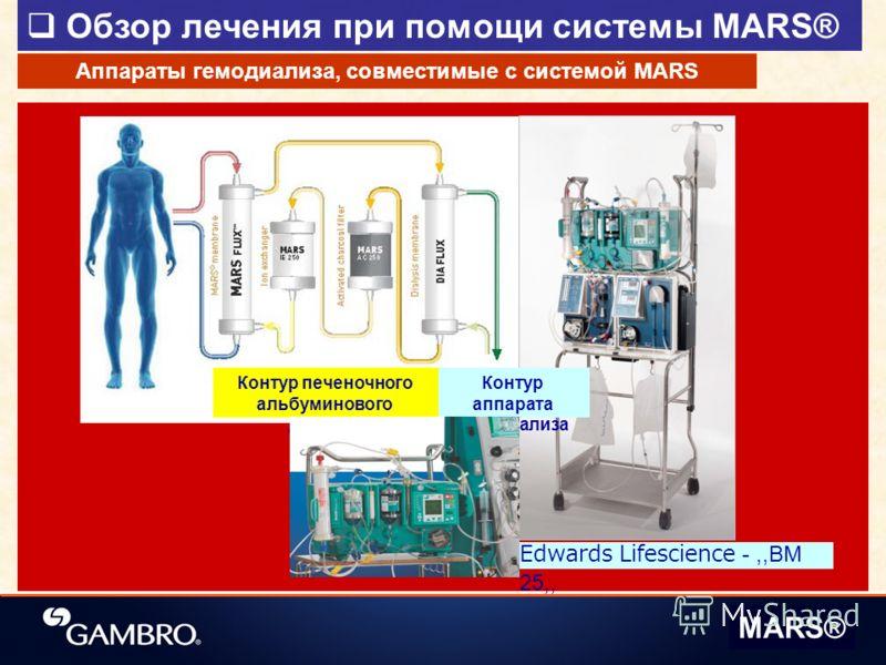 Обзор лечения при помощи системы MARS® MARS® Аппараты гемодиализа, совместимые с системой MARS Контур аппарата гемодиализа Контур печеночного альбуминового диализа Edwards Lifescience -,,BM 25,,