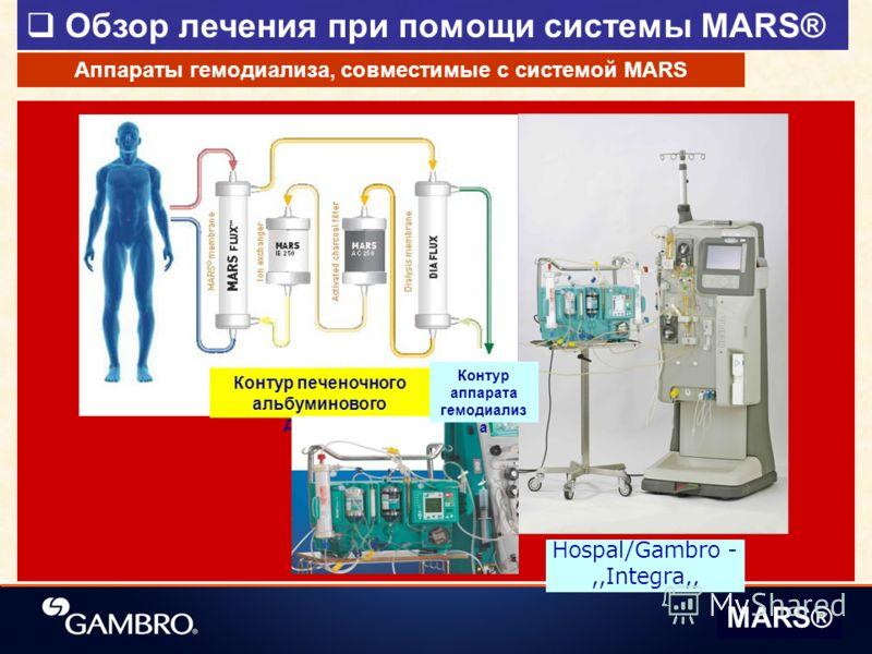Обзор лечения при помощи системы MARS® MARS® Контур печеночного альбуминового диализа Hospal/Gambro -,,Integra,, Аппараты гемодиализа, совместимые с системой MARS Контур аппарата гемодиализ а