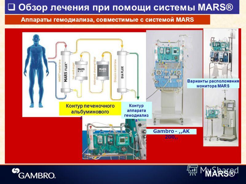 Обзор лечения при помощи системы MARS® MARS® Контур печеночного альбуминового диализа Аппараты гемодиализа, совместимые с системой MARS Варианты расположения монитора MARS Контур аппарата гемодиализ а Gambro -,,AK 200,,