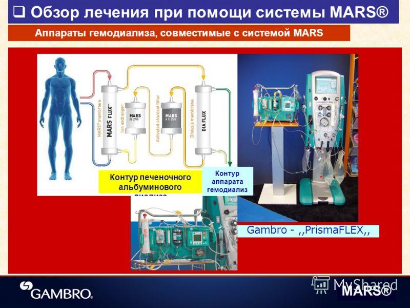 Обзор лечения при помощи системы MARS® MARS® Контур печеночного альбуминового диализа Gambro -,,PrismaFLEX,, Аппараты гемодиализа, совместимые с системой MARS Контур аппарата гемодиализ а