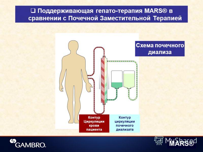 Поддерживающая гепато-терапия MARS® в сравнении с Почечной Заместительной Терапией Схема почечного диализа Контур циркуляции почечного диализата Контур Циркуляции крови пациента MARS®