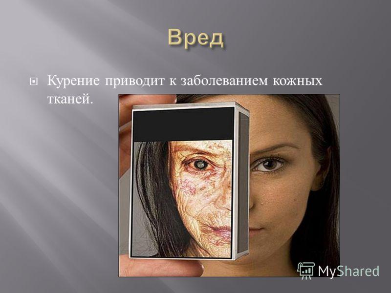 Курение приводит к заболеванием кожных тканей.