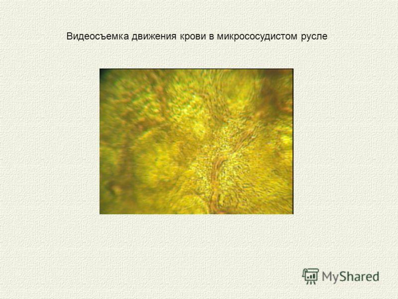Видеосъемка движения крови в микрососудистом русле