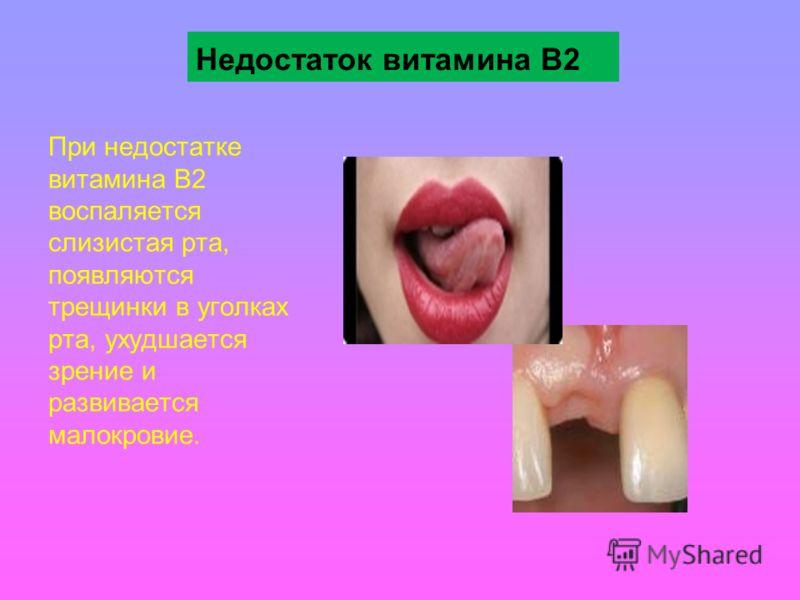 Недостаток витамина В2 При недостатке витамина В2 воспаляется слизистая рта, появляются трещинки в уголках рта, ухудшается зрение и развивается малокровие.