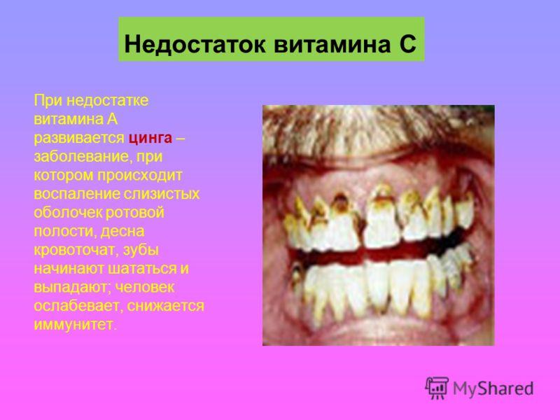 Недостаток витамина С При недостатке витамина А развивается цинга – заболевание, при котором происходит воспаление слизистых оболочек ротовой полости, десна кровоточат, зубы начинают шататься и выпадают; человек ослабевает, снижается иммунитет.