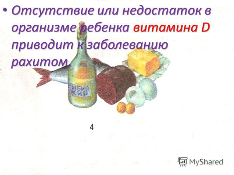 Отсутствие или недостаток в организме ребенка витамина D приводит к заболеванию рахитом. Отсутствие или недостаток в организме ребенка витамина D приводит к заболеванию рахитом.