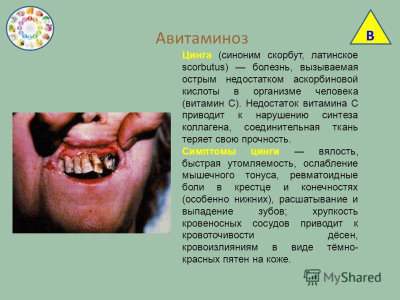 Авитаминоз Цинга (синоним скорбут, латинское scorbutus) болезнь, вызываемая острым недостатком аскорбиновой кислоты в организме человека (витамин C). Недостаток витамина C приводит к нарушению синтеза коллагена, соединительная ткань теряет свою прочн