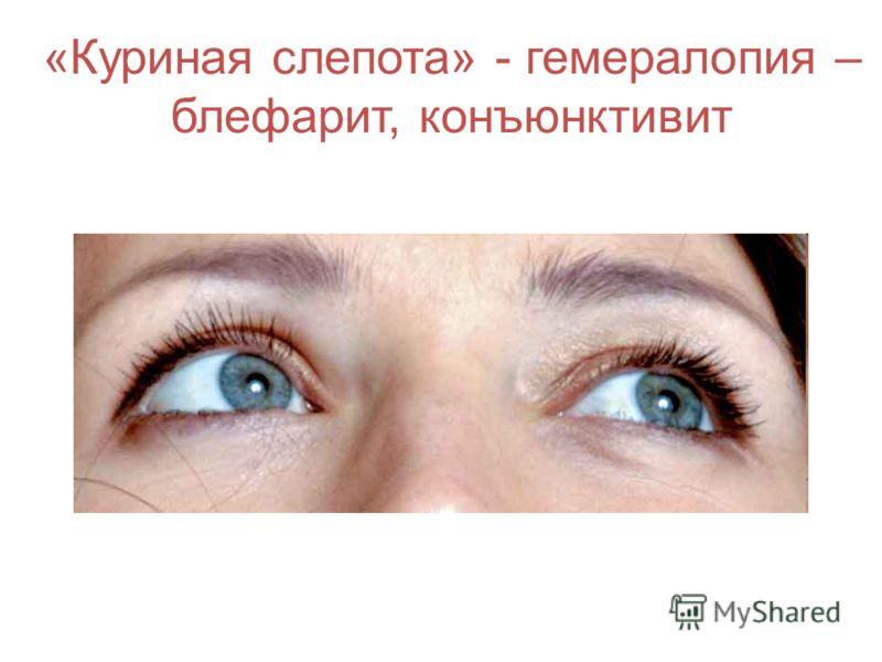 «Куриная слепота» - гемералопия – блефарит, конъюнктивит
