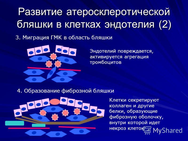 Развитие атеросклеротической бляшки в клетках эндотелия (2) 3. Миграция ГМК в область бляшки 4. Образование фиброзной бляшки Эндотелий повреждается, активируется агрегация тромбоцитов Клетки секретируют коллаген и другие белки, образующие фиброзную о