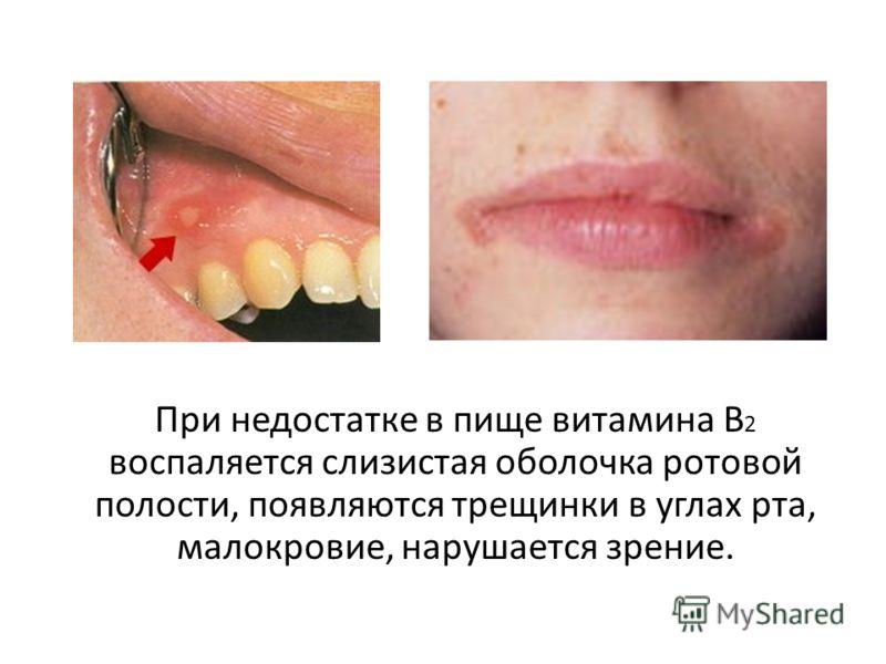 При недостатке в пище витамина В 2 воспаляется слизистая оболочка ротовой полости, появляются трещинки в углах рта, малокровие, нарушается зрение.