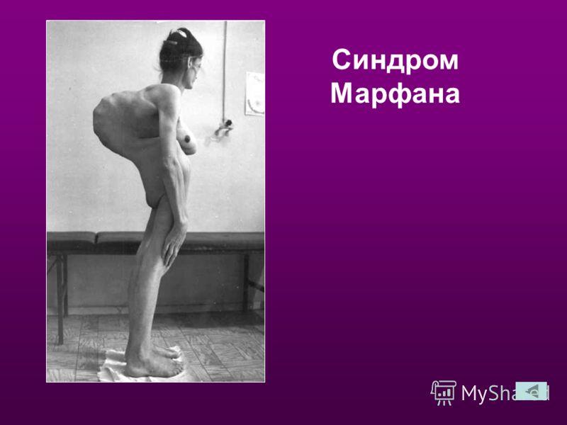 Главный диабетолог России рассказал о революции в