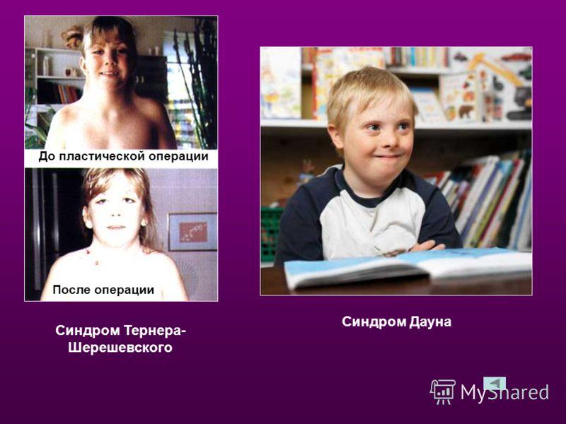 Синдром Тернера- Шерешевского Синдром Дауна До пластической операции После операции