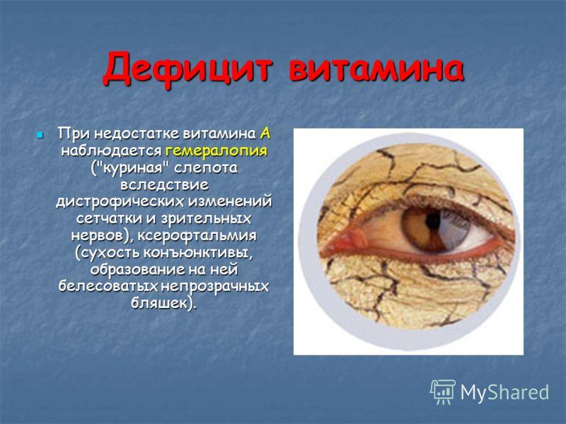 Дефицит витамина При недостатке витамина А наблюдается гемералопия (