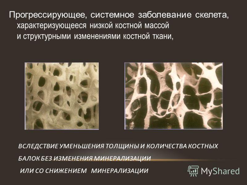 Прогрессирующее, системное заболевание скелета, характеризующееся низкой костной массой и структурными изменениями костной ткани, ВСЛЕДСТВИЕ УМЕНЬШЕНИЯ ТОЛЩИНЫ И КОЛИЧЕСТВА КОСТНЫХ БАЛОК БЕЗ ИЗМЕНЕНИЯ МИНЕРАЛИЗАЦИИ ИЛИ СО СНИЖЕНИЕМ МИНЕРАЛИЗАЦИИ