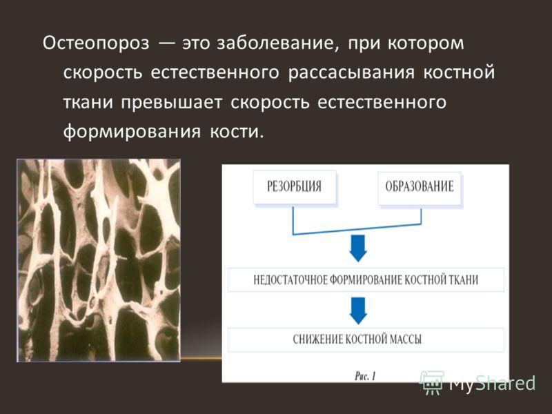 Остеопороз это заболевание, при котором скорость естественного рассасывания костной ткани превышает скорость естественного формирования кости.