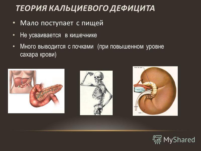 ТЕОРИЯ КАЛЬЦИЕВОГО ДЕФИЦИТА Мало поступает с пищей Не усваивается в кишечнике Много выводится с почками (при повышенном уровне сахара крови)