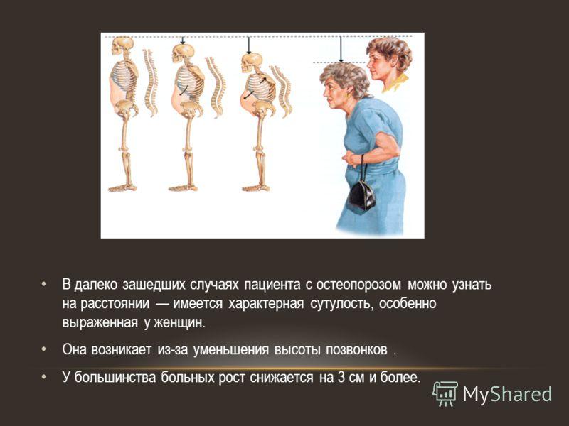 В далеко зашедших случаях пациента с остеопорозом можно узнать на расстоянии имеется характерная сутулость, особенно выраженная у женщин. Она возникает из-за уменьшения высоты позвонков. У большинства больных рост снижается на 3 см и более.