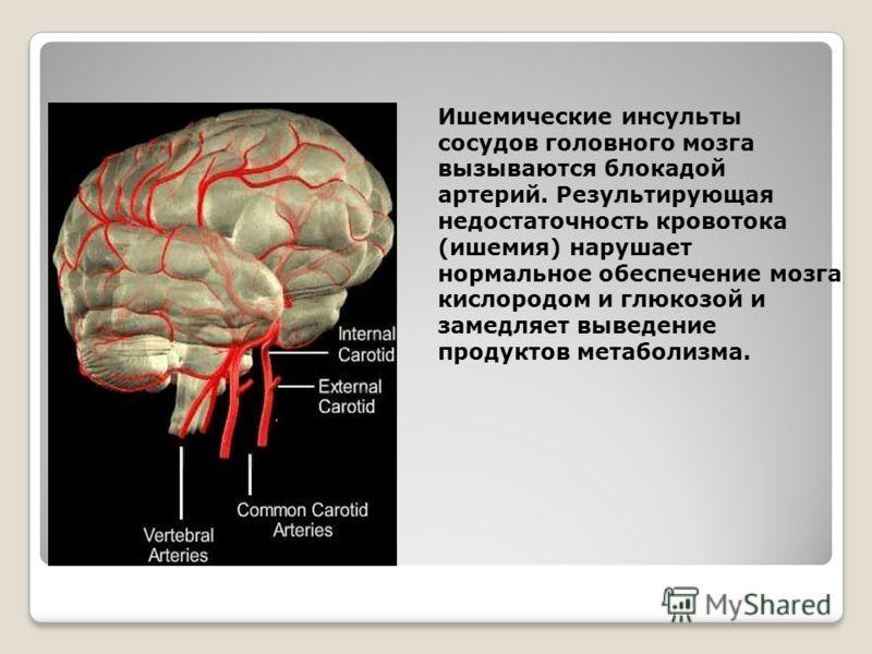 Ишемические инсульты сосудов головного мозга вызываются блокадой артерий. Результирующая недостаточность кровотока (ишемия) нарушает нормальное обеспечение мозга кислородом и глюкозой и замедляет выведение продуктов метаболизма.