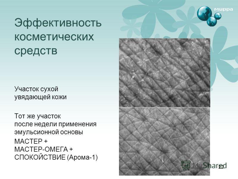 22 Эффективность косметических средств Участок сухой увядающей кожи Тот же участок после недели применения эмульсионной основы МАСТЕР + МАСТЕР-ОМЕГА + СПОКОЙСТВИЕ (Арома-1)