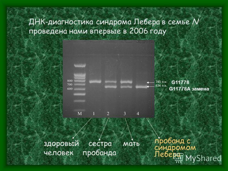 745 п.н. 634 п.н. ДНК-диагностика синдрома Лебера в семье N проведена нами впервые в 2006 году здоровый сестра мать человек пробанда G11778A замена G11778 пробанд с синдромом Лебера