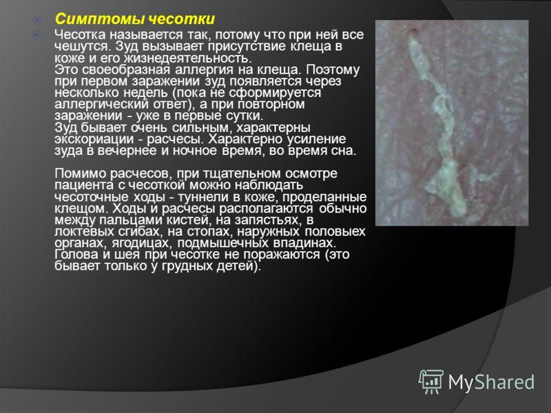 Симптомы чесотки Чесотка называется так, потому что при ней все чешутся. Зуд вызывает присутствие клеща в коже и его жизнедеятельность. Это своеобразная аллергия на клеща. Поэтому при первом заражении зуд появляется через несколько недель (пока не сф