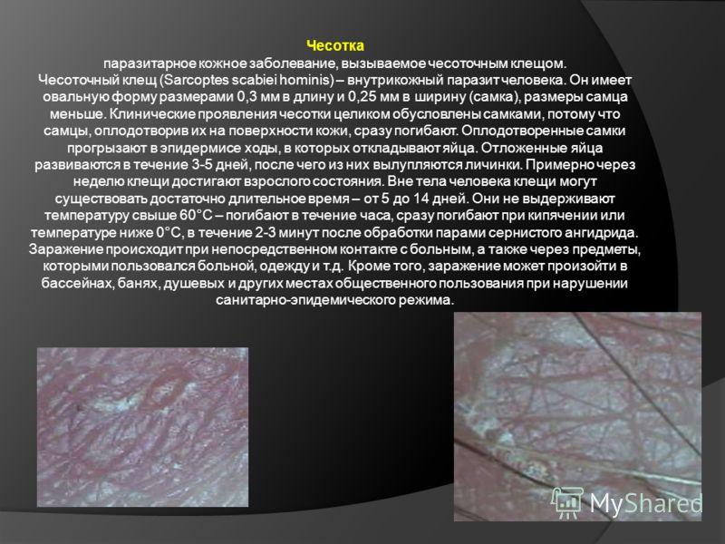 Чесотка паразитарное кожное заболевание, вызываемое чесоточным клещом. Чесоточный клещ (Sarcoptes scabiei hominis) – внутрикожный паразит человека. Он имеет овальную форму размерами 0,3 мм в длину и 0,25 мм в ширину (самка), размеры самца меньше. Кли