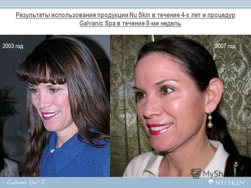Результаты использования продукции Nu Skin в течение 4-х лет и процедур Galvanic Spа в течение 8-ми недель 35 2003 год2007 год 5